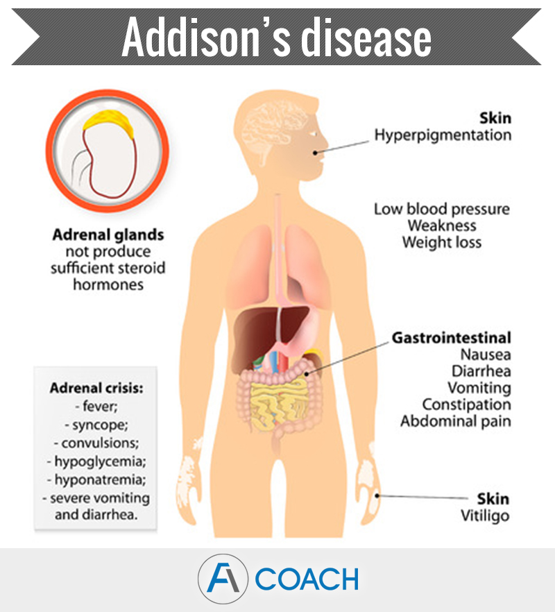 Adrenal Gland Disorders A Quick Overview Adrenal Fatigue Coach